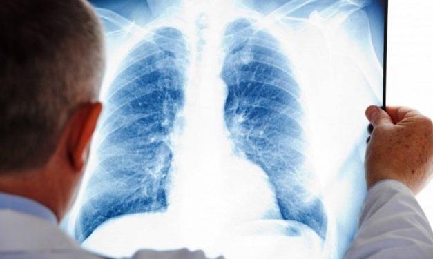 Туберкулезных больных в Павлограде теперь будут лечить по-новому