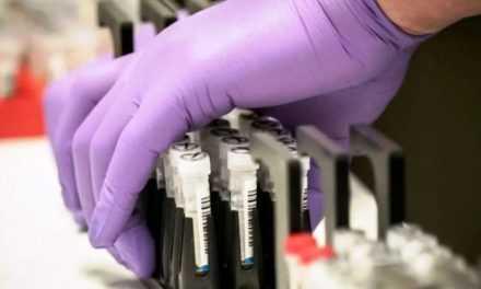 72 случая коронавирусной инфекции обнаружили в Днепропетровской области за сутки